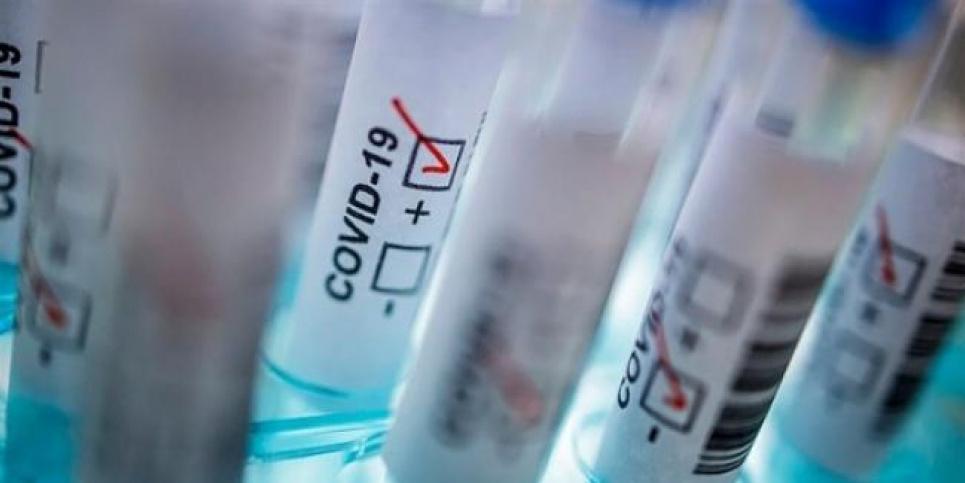 COVID-19: в Україні — 591 новий випадок зараження, в Британії за добу — понад 50 тисяч