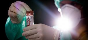 Варіант Дельта може бути більш заразним на ранній стадії інфекції,