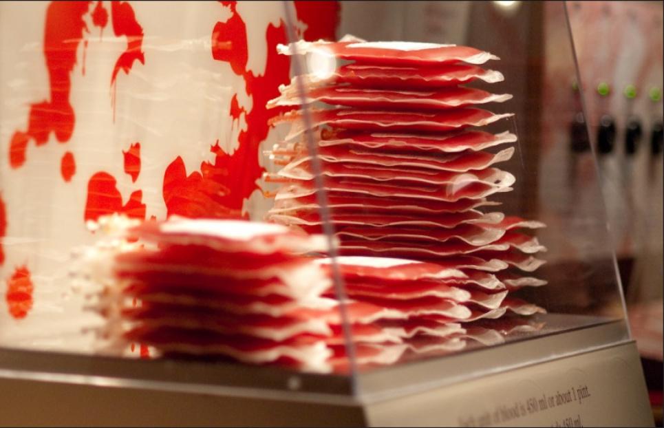 Вчені з'ясували, у людей з якою групою крові найвищий ризик інфаркту