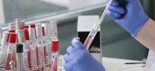 Масове тестування на антитіла