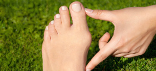Врачи назвали три эффективных способа, которые избавят от «косточки» на ноге
