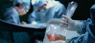 У Запоріжжі пересадку серця вдалося зафільмувати на відео.