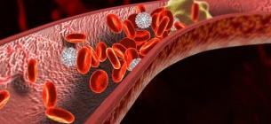 Як визначити наявність тромбів в організмі