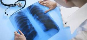 У Нацслужбі здоров'я назвали суму, яку виділять з бюджету на лікування кожного хворого
