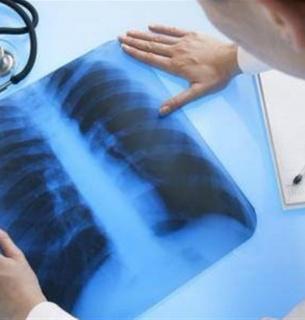 Туберкулез в Украине — в Нацслужбе здоровья назвали сумму, которую выделят из бюджета на лечение каждого больного