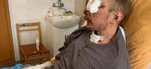 У столичному госпіталі — нові важкопоранені бійці, після ампутацій та з втратою зору. Фото з ФБ Юсупової.