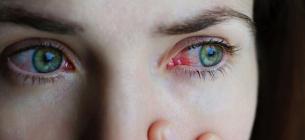 ТОП-3 дивних симптоми, які говорять про артрит