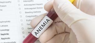 Залізодефіцитна анемія: симптоми, причини і способи лікування