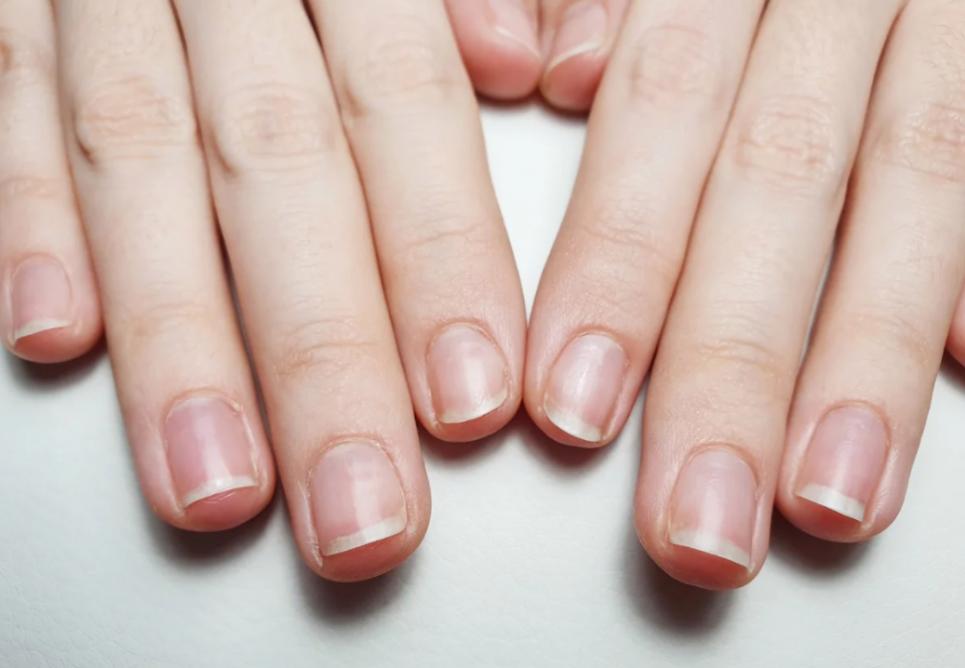 Які хвороби можна визначити по стану нігтів
