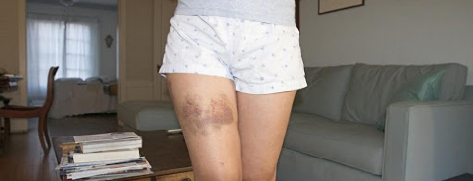 Симптомом каких болезней могут быть частые синяки на теле