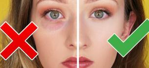 Шість природних засобів проти темних кіл і мішків під очима