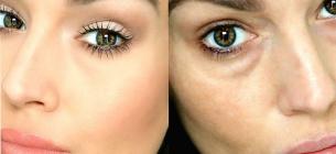 О наличии каких проблем со здоровьем говорят «синяки» под глазами?