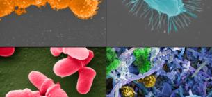 Ученые научились лечить рак с помощью собственной микрофлоры пациента