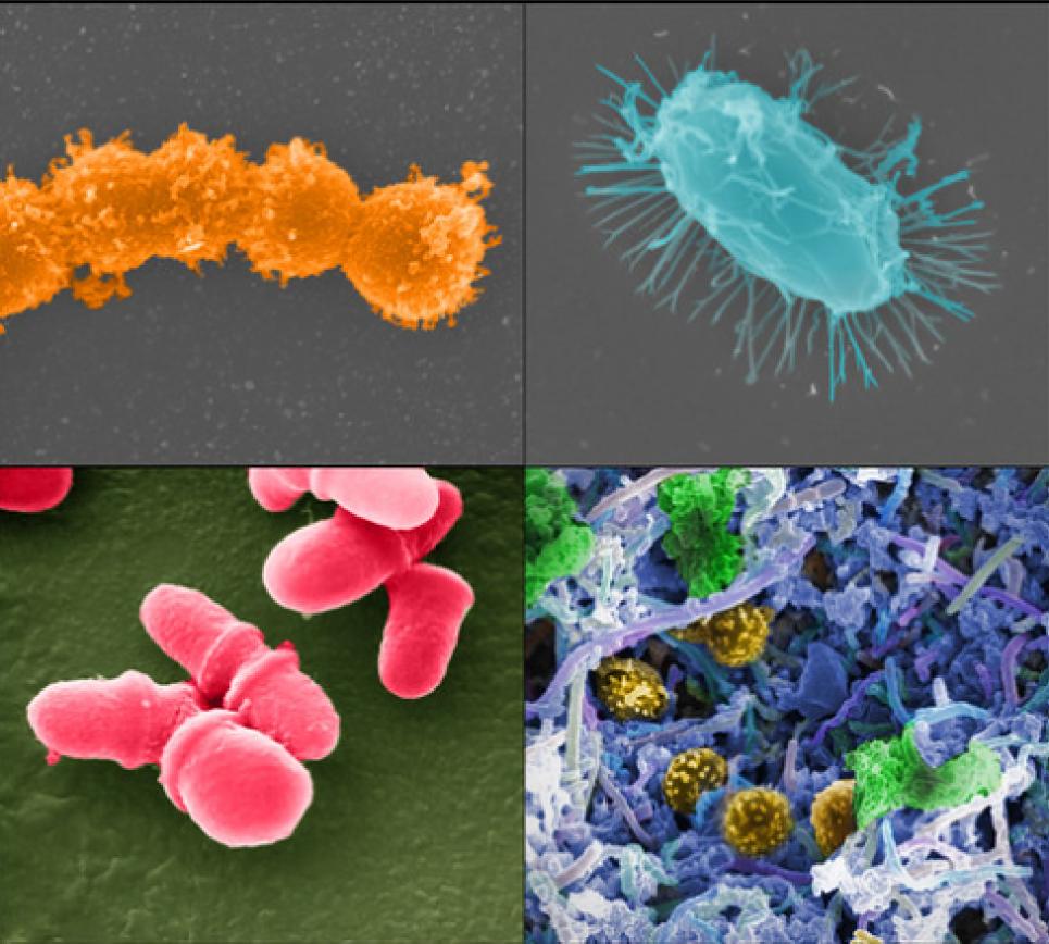 Науковці навчилися лікувати рак за допомогою власної мікрофлори пацієнта