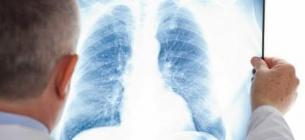 Врачи и пациенты стали заложниками провальной политики государства в противодействии туберкулезу за последние 15 лет — эксперт