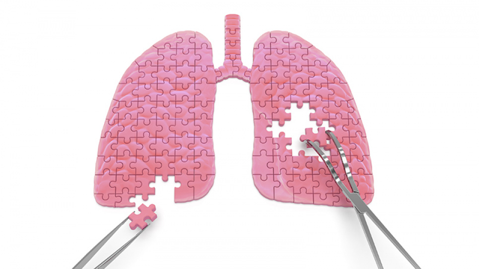 Из-за COVID-19 возвращаются пещерные формы туберкулеза, которые мы преодолели еще в девяностых годах — эксперт