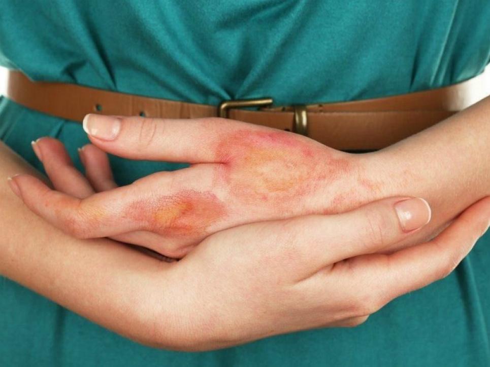 Винайдено технологію вирощування штучної шкіри: всього 24−48 годин на заживлення