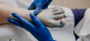 «Столбняк — не коронавирус»: инфекционист рассказывает, как «правильно бояться» столбняка