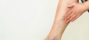 8 ознак тромбозу, які небезпечно ігнорувати