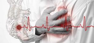 В Інституті Амосова розпочали проводити операції, які позбавляють миготливої аритмії
